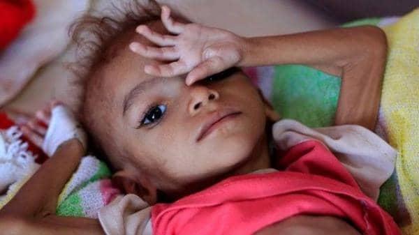 صحيفة أمريكية: أعمال الحوثيين الشنيعة سببت أسوأ أزمة إنسانية في العالم